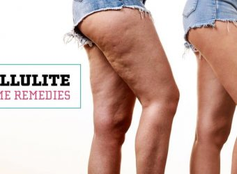 Tips for battling cellulite.