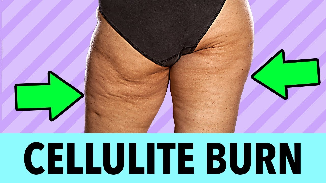 How to Get Rid of Cellulite   Fat Burning Workout