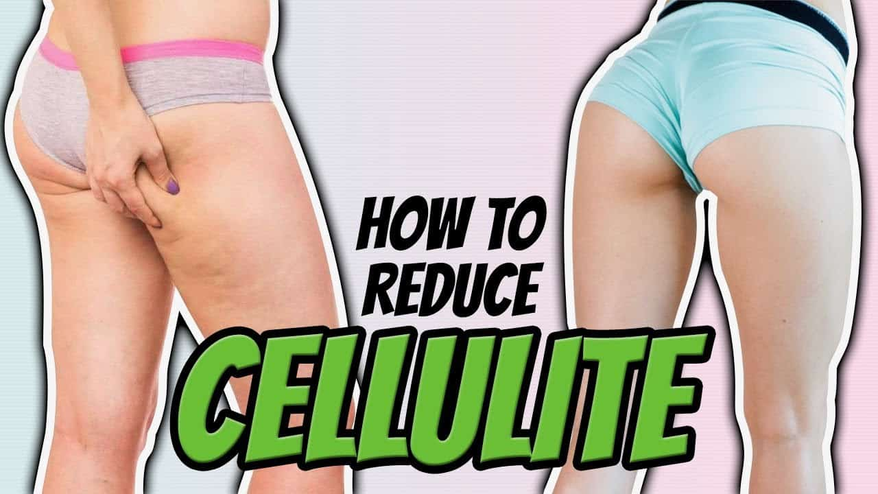 You need to stay motivated and focused to lose cellulite.