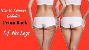 What Is The Best Way To Get Rid Of Cellulite