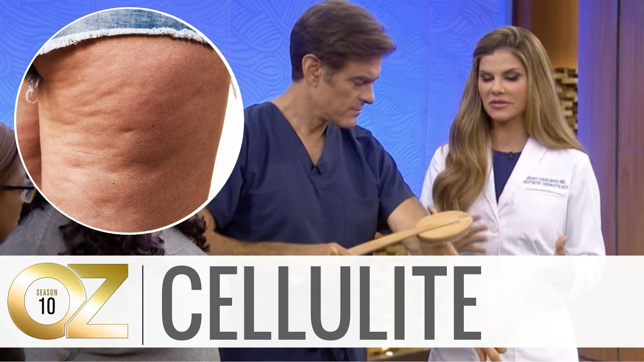 3 At-Home Cellulite Treatments