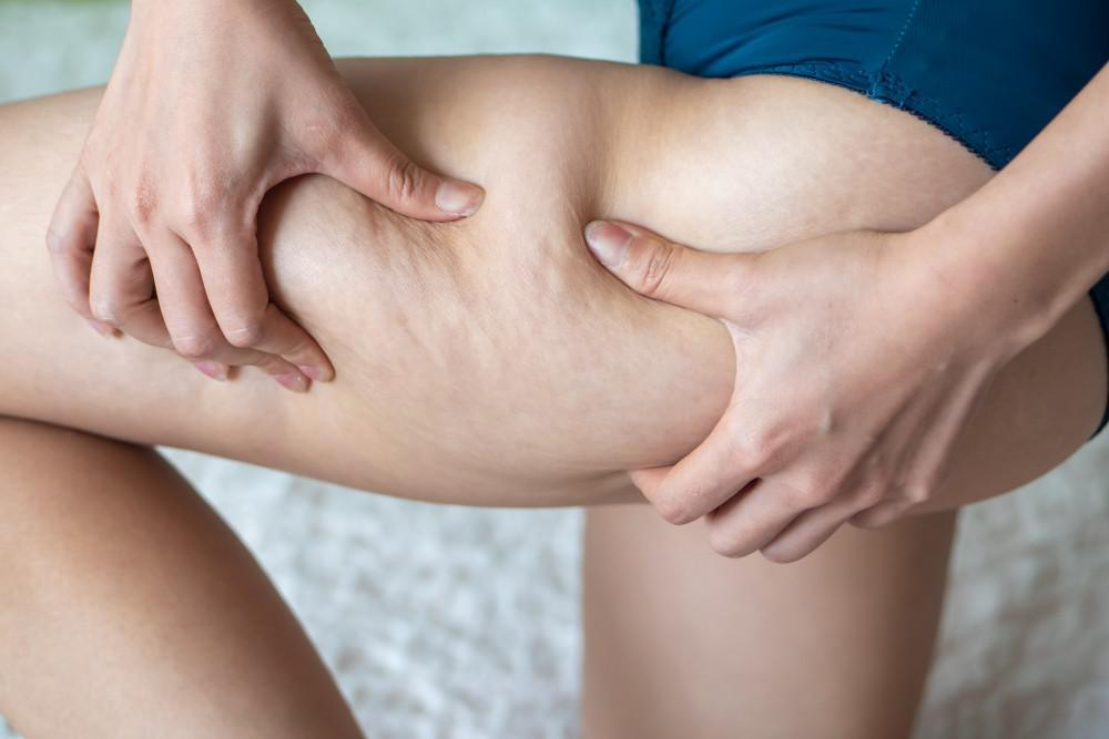 How to Get Rid of Cellulite Naturally (And at Home!)