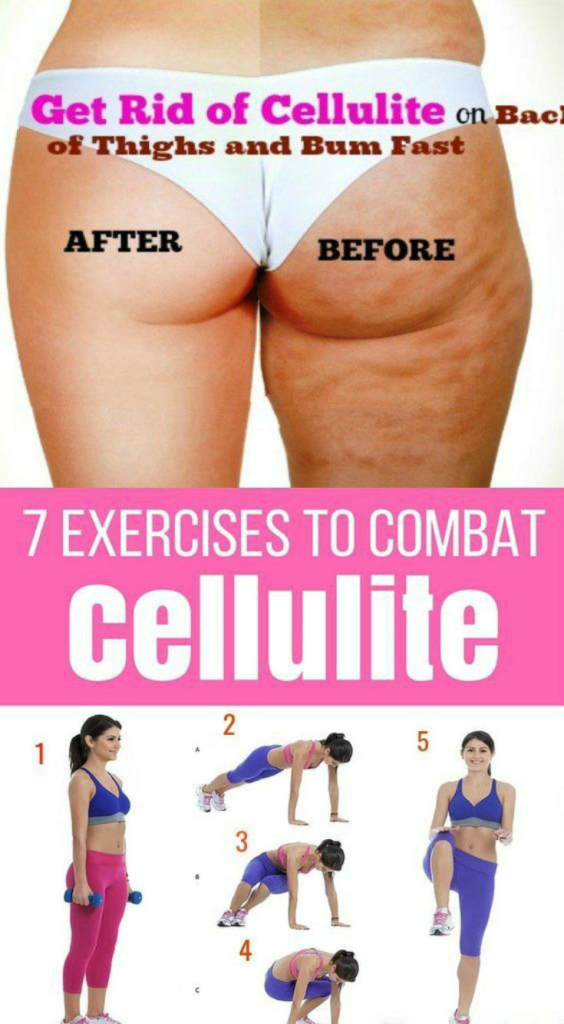 Exercise To Lose Weight And Cellulite